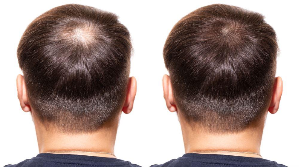 Hestanbul-Hair-loss-prp-hairtransplant