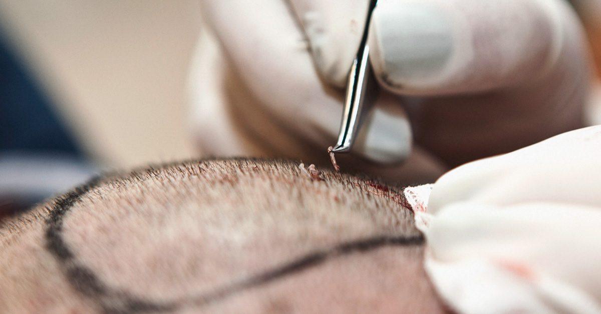 hair_transplant-1200x628-facebook-1200x628.jpg