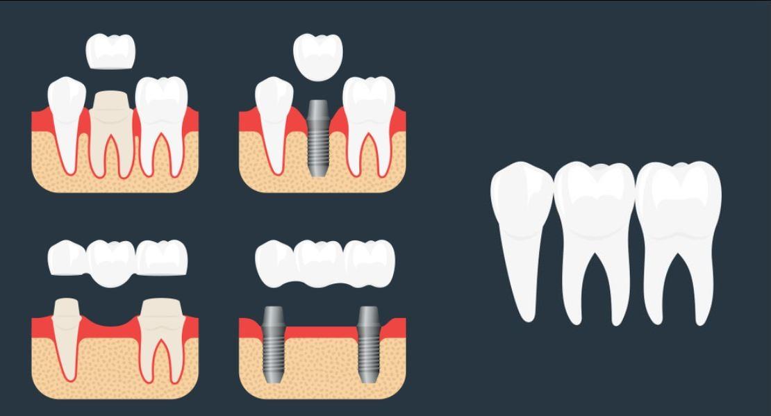 Dental-Implants-And-Bridges-1.jpg